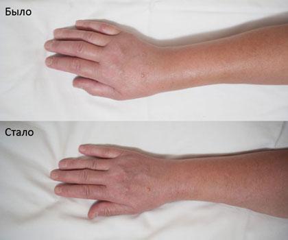 Артрит после перелома лучевой кости