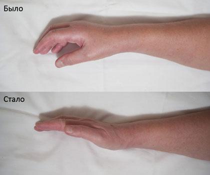 Безболезненная разработка суставов кисти (фото и видео). Возможно ...