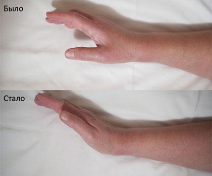 Анкилоз лучезапястного сустава народные средства для суставов ног